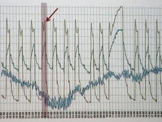 Taktprofil einer Wärmepumpe mit Störung (Pfeil). Daten/Grafik: Viessmann Heizung Wärmemarkt Digitalisierung, Smart Home